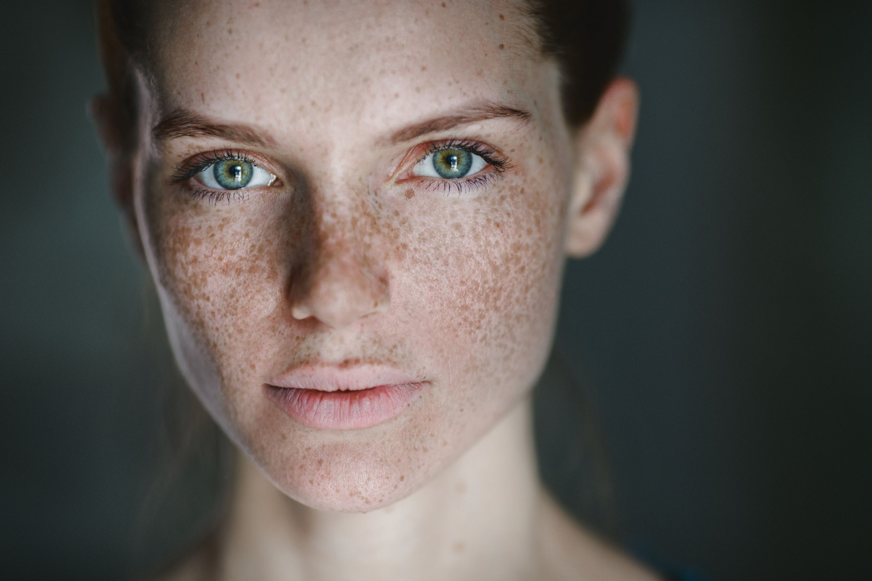 ho made freckles iconic - HD2000×1333